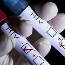 Пройти экспресс-тестирование на ВИЧ-инфекцию